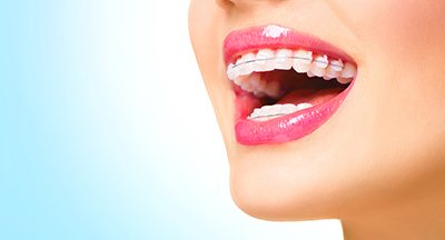 clear braces in wayland ma