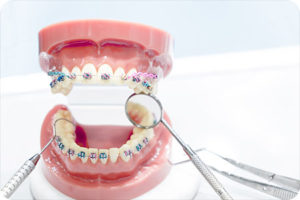 orthodontist in manchester nh